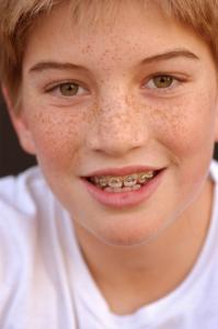 appareil-dentaire-enfant