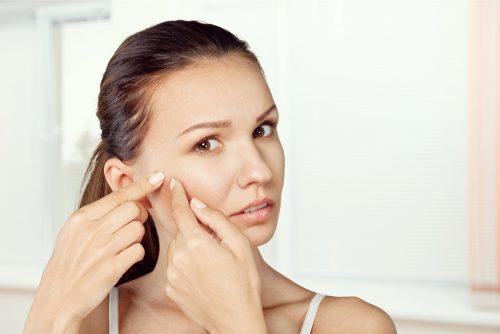 acne-visage